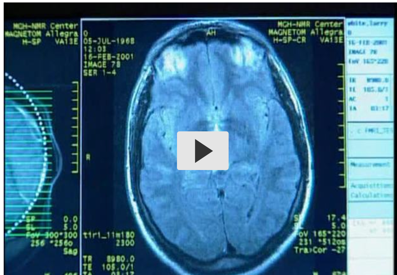 Cognitive Neuroscience video screenshot