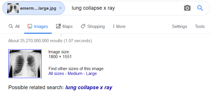 Google search of an image of a lung collapse x-ray. Google indicates lung collapse x-ray as a possible related search.