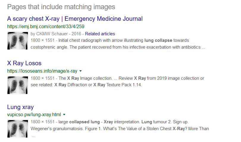 Results of a google reverse image search of a lung collapse x-ray. Google indicates pages that include matching images.