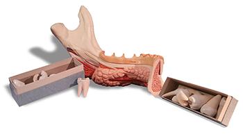 Jaw with 8 Diseased Teeth