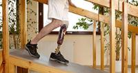Patient learning to walk with prosthetic leg