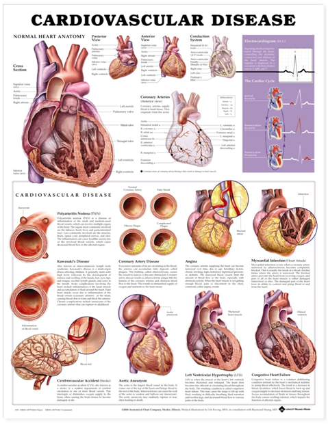 Cardiovascular disease poster showing the anatomy of the heart with labelled diagrams detailing the changes that occur with cardiovascular disease.