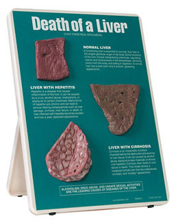 Death of a liver board with different slices of liver showing a normal one, one with hepatitis, and one with cirrhosis.