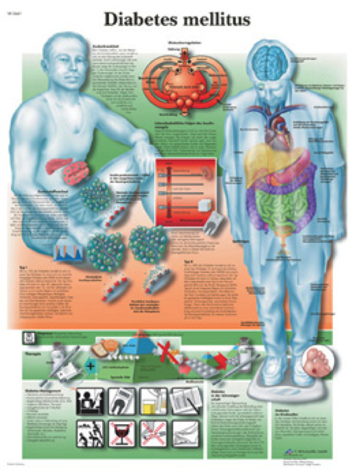 diabetes poster showing a person sitting and someone standing with illustrations of effects of diabetes throughout body