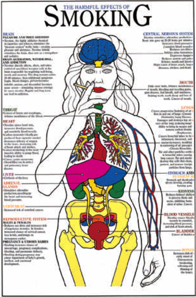 Poster of Human Body with Written Effects of Smoking