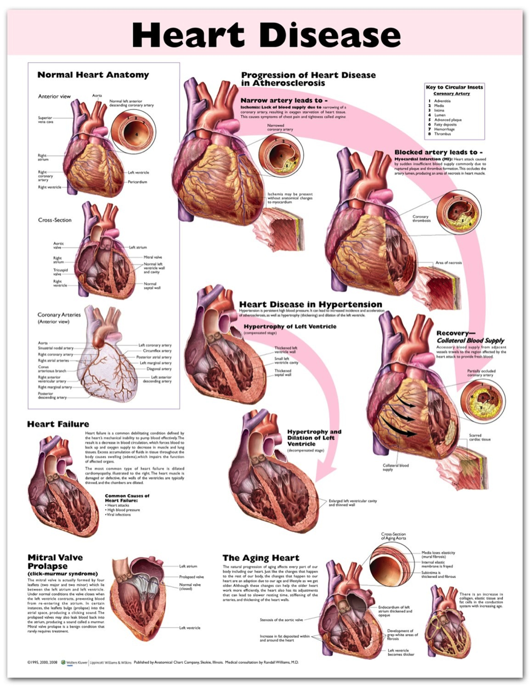 poster showing anatomic illustrations of the heart to show heart disease's effects