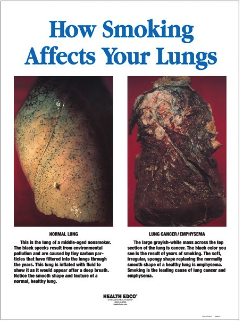 "poster titled ""How Smoking Affects Your Lungs"" that shows an image and description for a normal lung and a lung with cancer side-by-side."