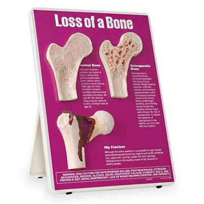 Loss of a bone model of cross-sections of femurs mounted on a board. They represent a normal bone, bone with osteoporosis, and a fractured hip.