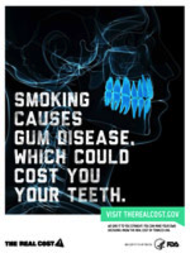 X-Ray of Teeth and Warning of Effects of Smoking
