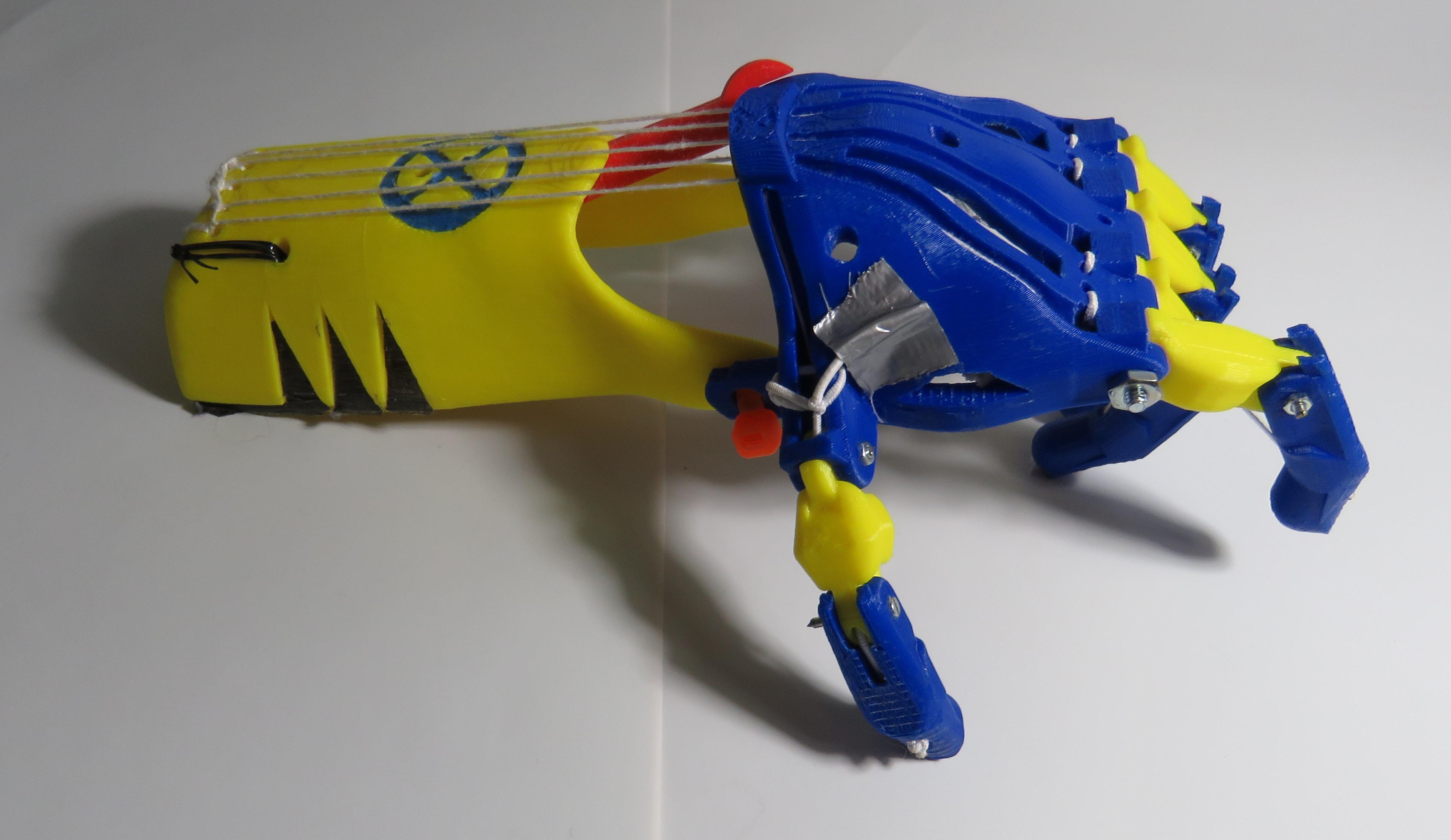Prosthetics Arm