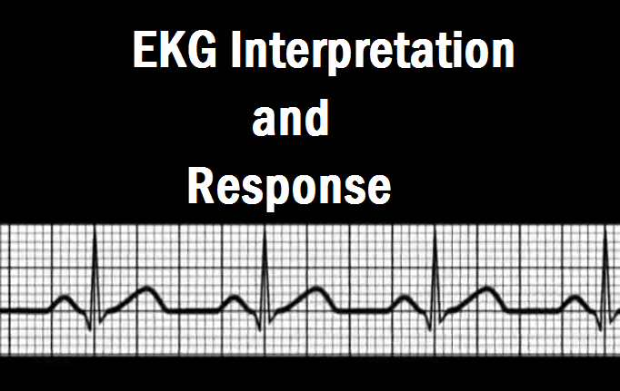 EKG Interpretation and Response