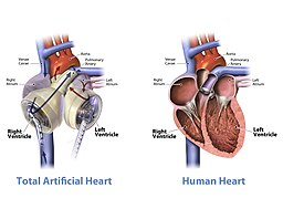 Author:SynCardia Systems, Inc. Artificial heart and human heart