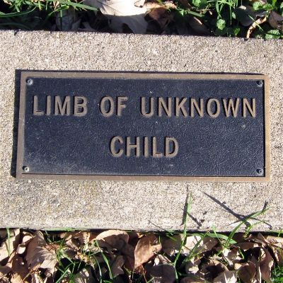 Limb of unknown child