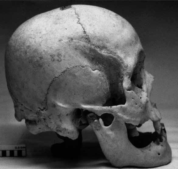 photo of skull with unusual bony bumps (side view)