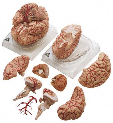 anatomy model of the brain with arteries