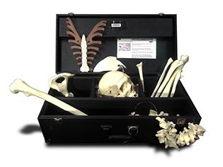 Upper And Lower Half Disarticulated Skeleton