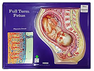 Full Term Fetus