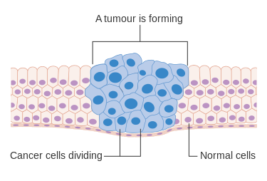 Diagram of an cancer cells