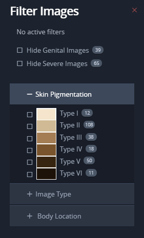 Filter for skin pigmentation, showing types I through VI. There is a checkbox beside each option to select it.