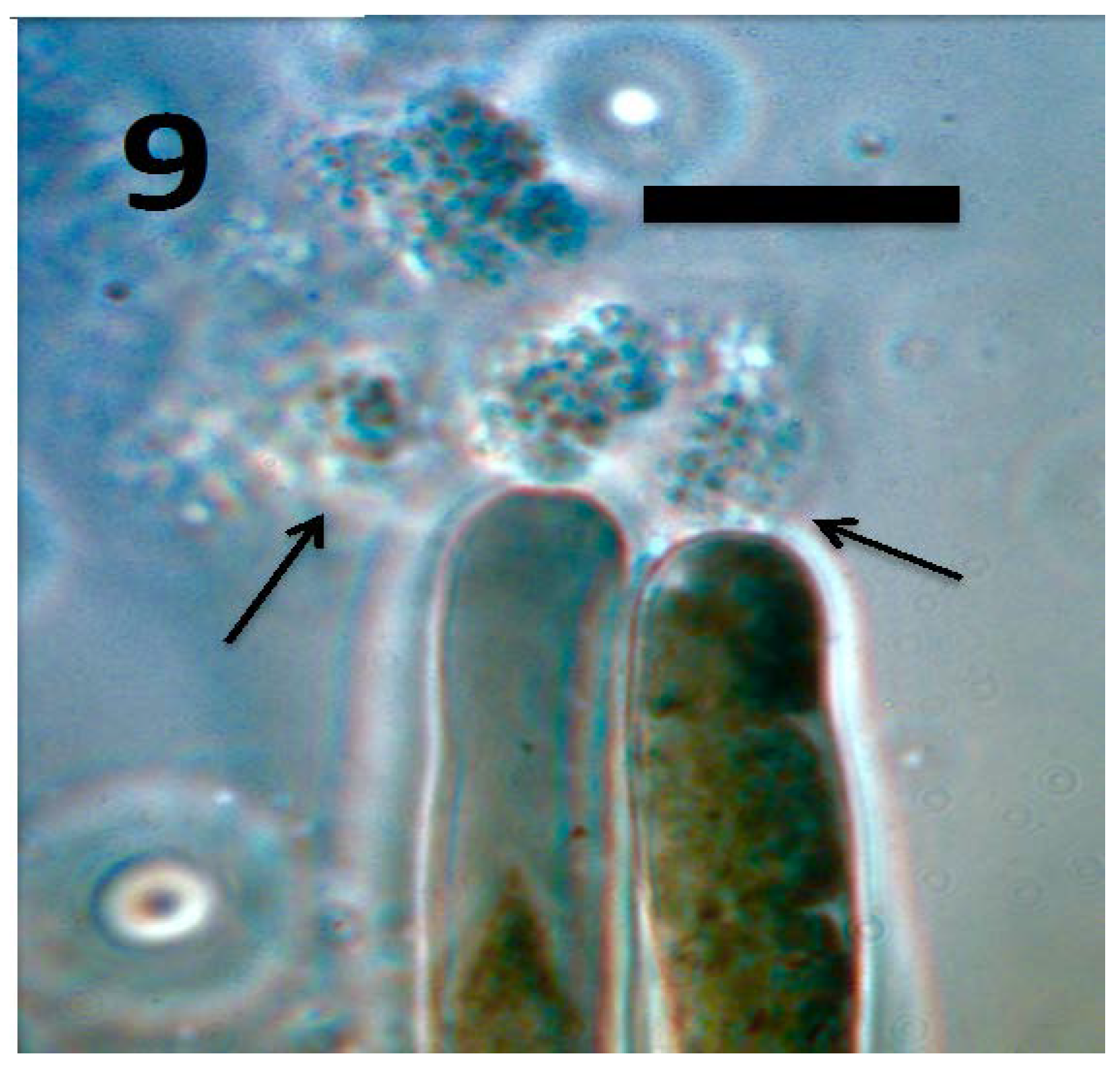 Rhizophagy Cycle: An Oxidative Process in Plants for Nutrient Extraction from Symbiotic Microbes