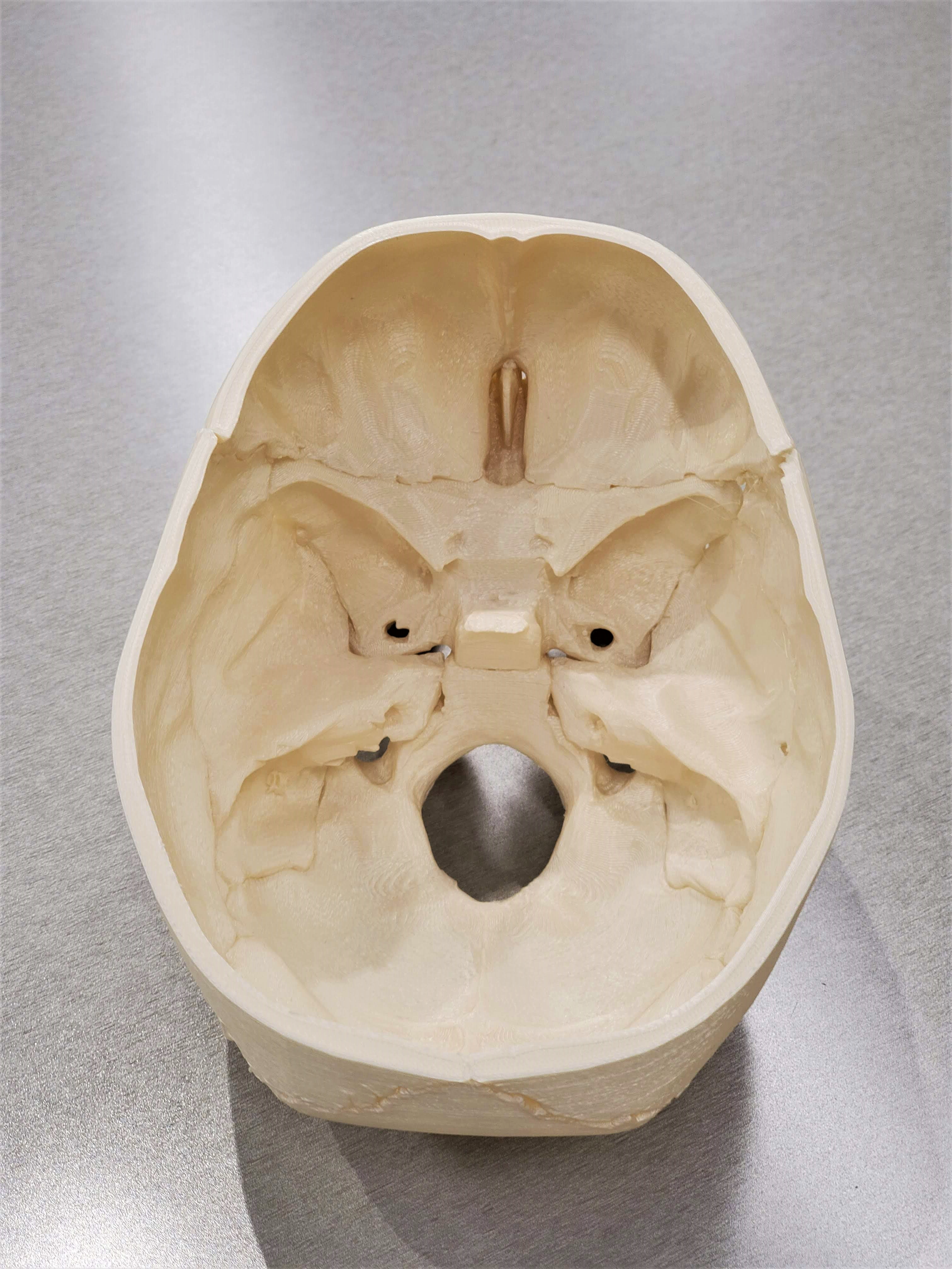Inside of 3D printed skull without top