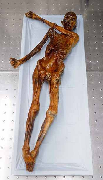 picture of otzi