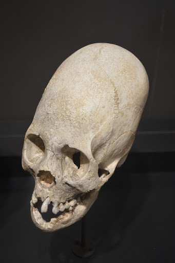 picture of one of the skulls previously held in Yale's Machu Picchu collection