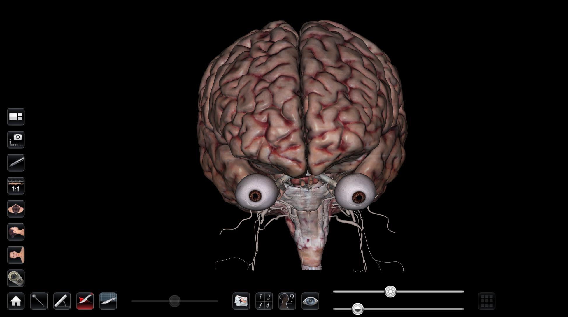 High Resolution Brain