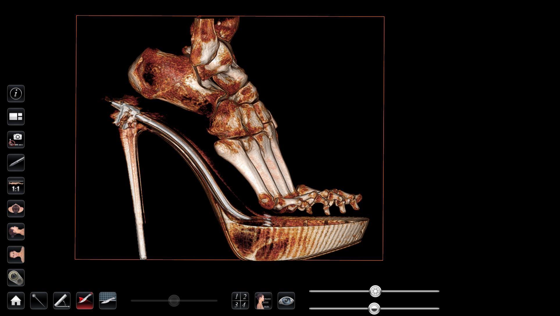 High Heel Foot MRI