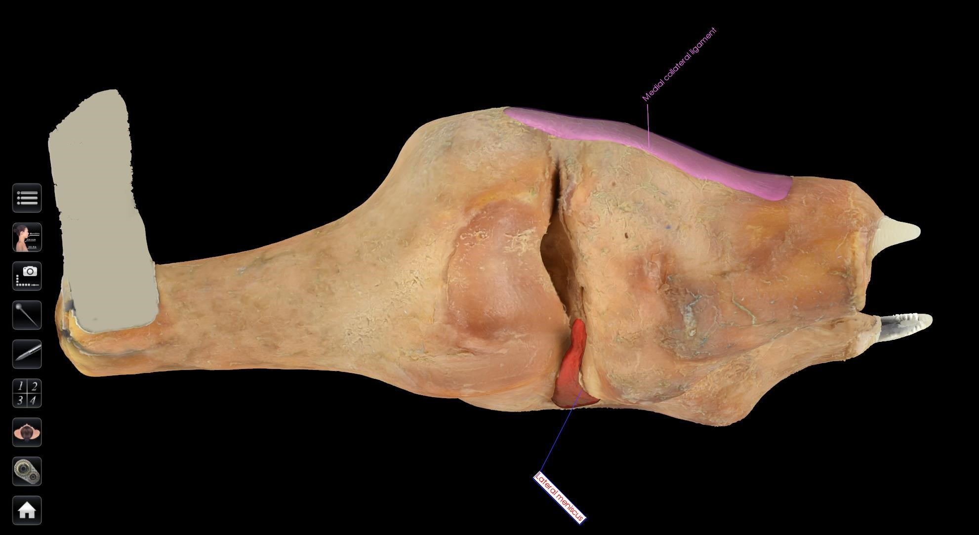 knee prosection