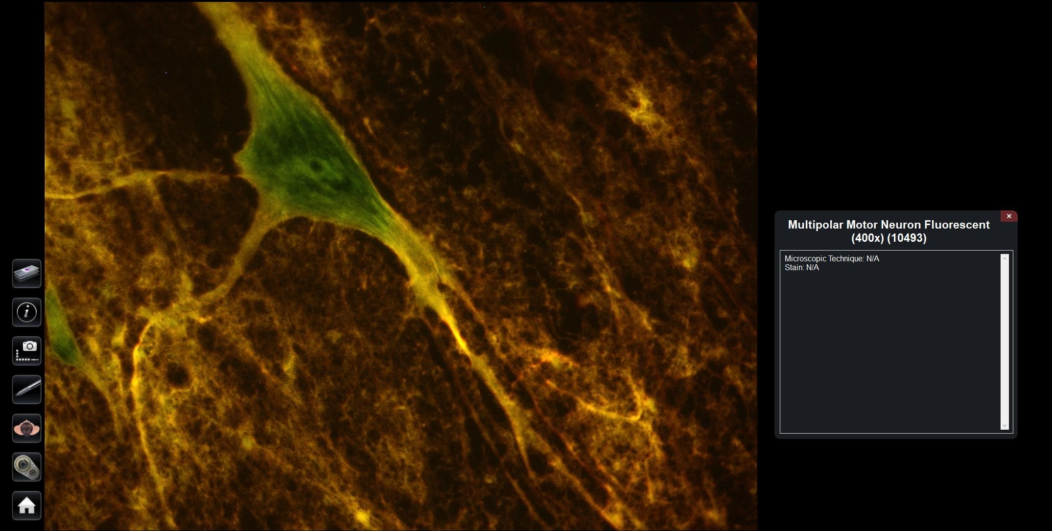 Stained Motor Neuron