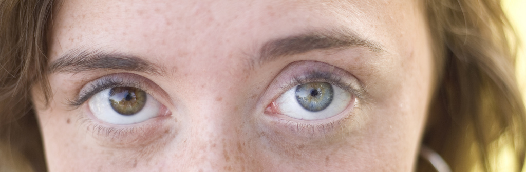 Image of a young woman with one blue and one green eye.