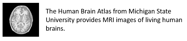 The Human Brain Atlas from Michigan State University provides MRI images of living human brains.
