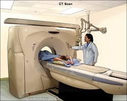 Computed Tomography Image