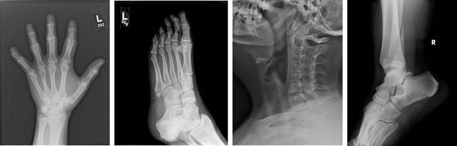 series of radiographic images