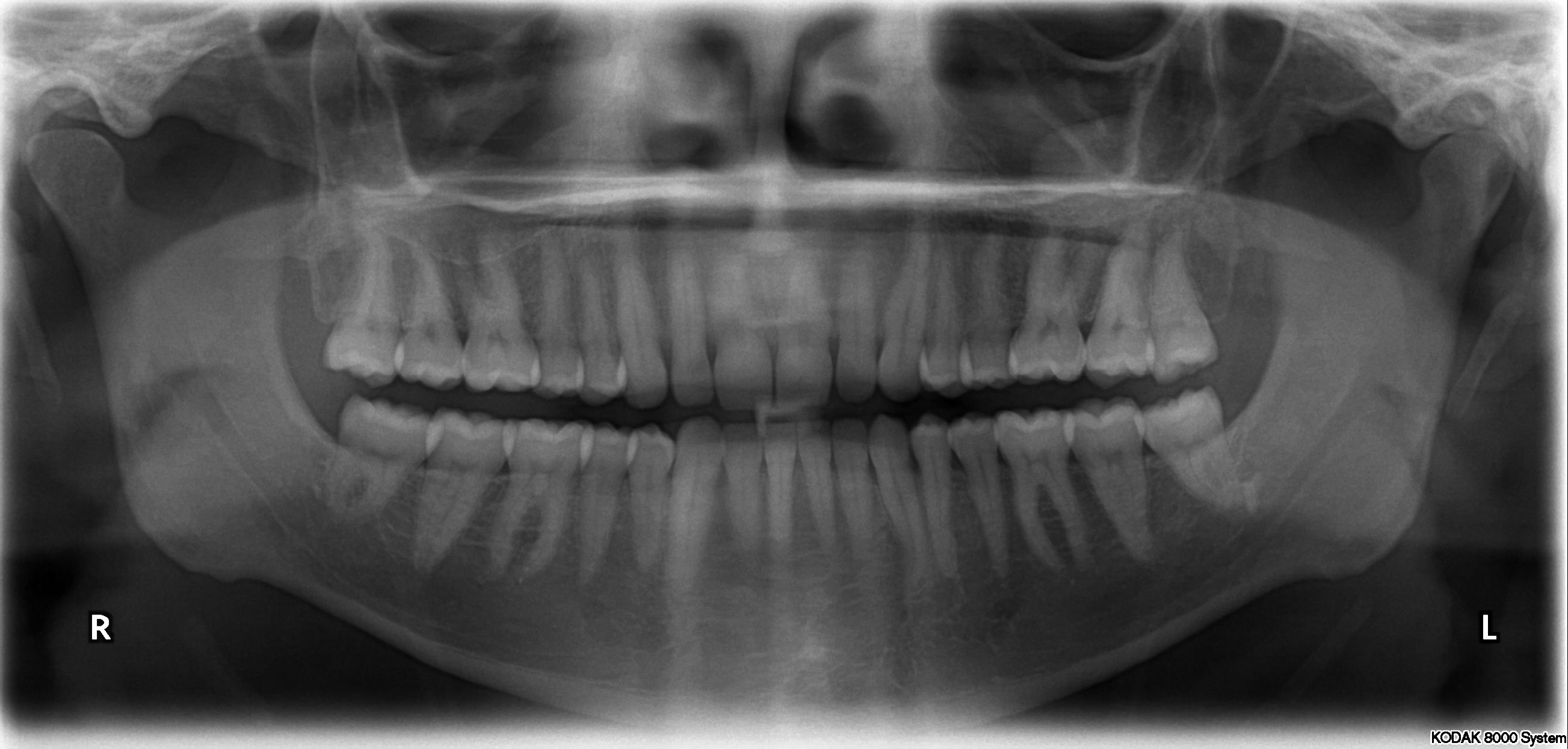 x-ray of 32 teetch