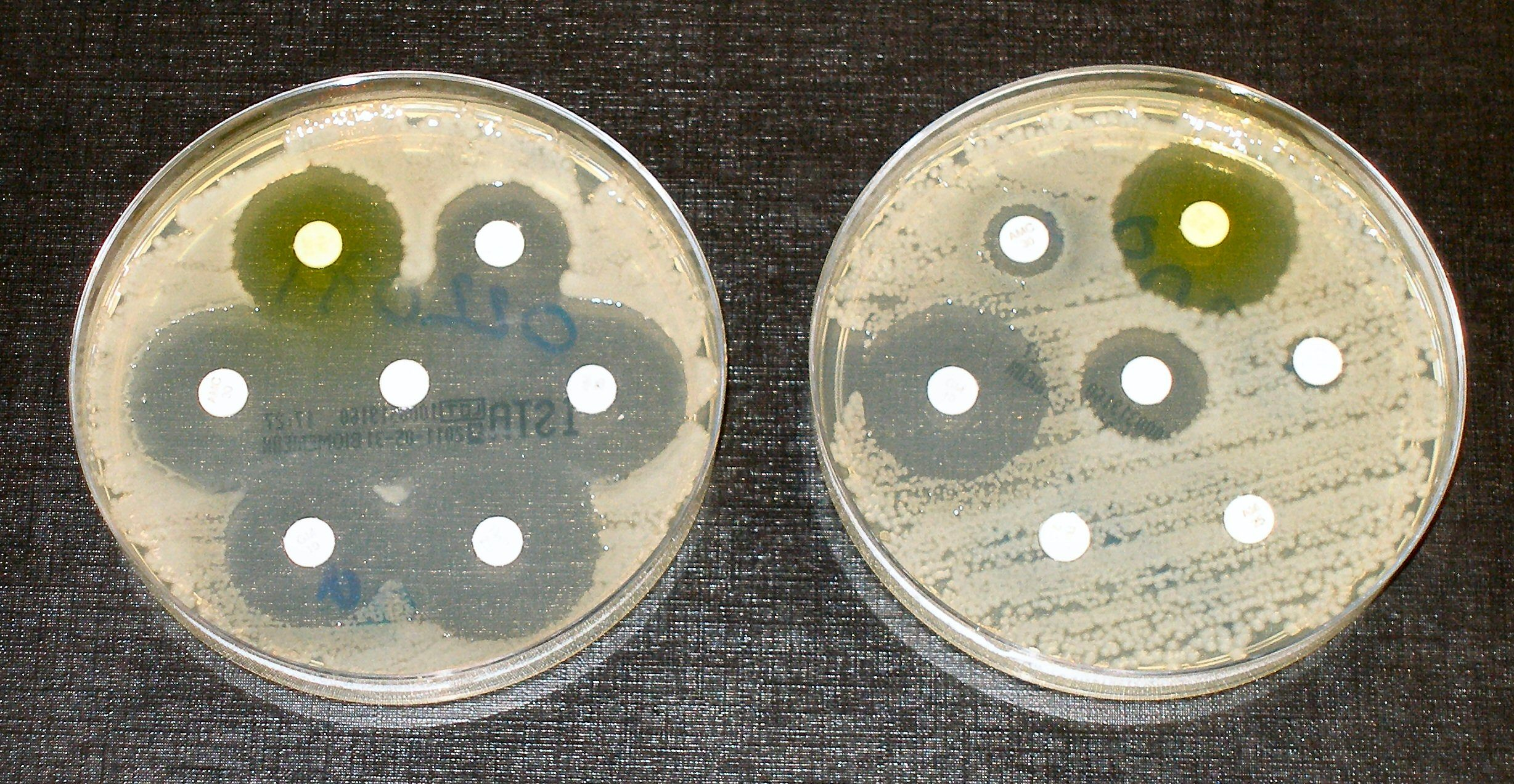Photo of bacteria in petri dishes