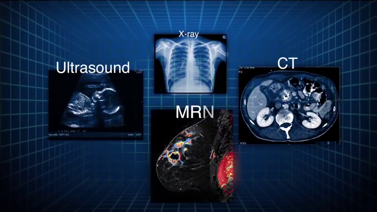 medical imaging with photo of ultrasound, CT scan and x-ray with white boxed outlines and blue navy blue background