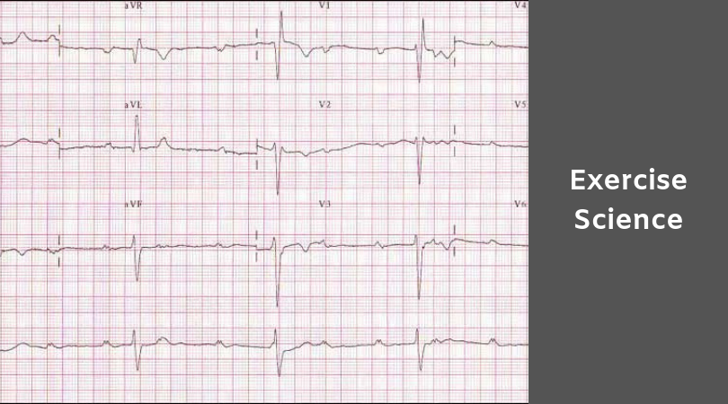 photo of an EKG printout