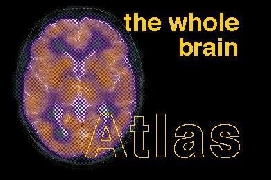 Whole Brain Atlas (Harvard University)