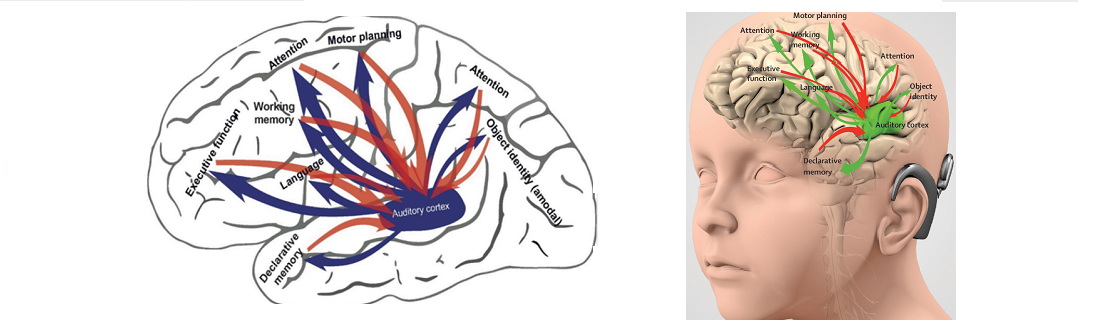 Auditory component of the human brains connectome Illustration of interactions of the human auditory cortex with higher order areas involved in cognitive functions. Locations of the functions on the brain are schematic. Bottom-up connections are shown in green, top-down in red. The thickness of the lines does not refl ect connection strength. The speech processor and the active cortex are shown on the same side of the brain for illustration purposes.